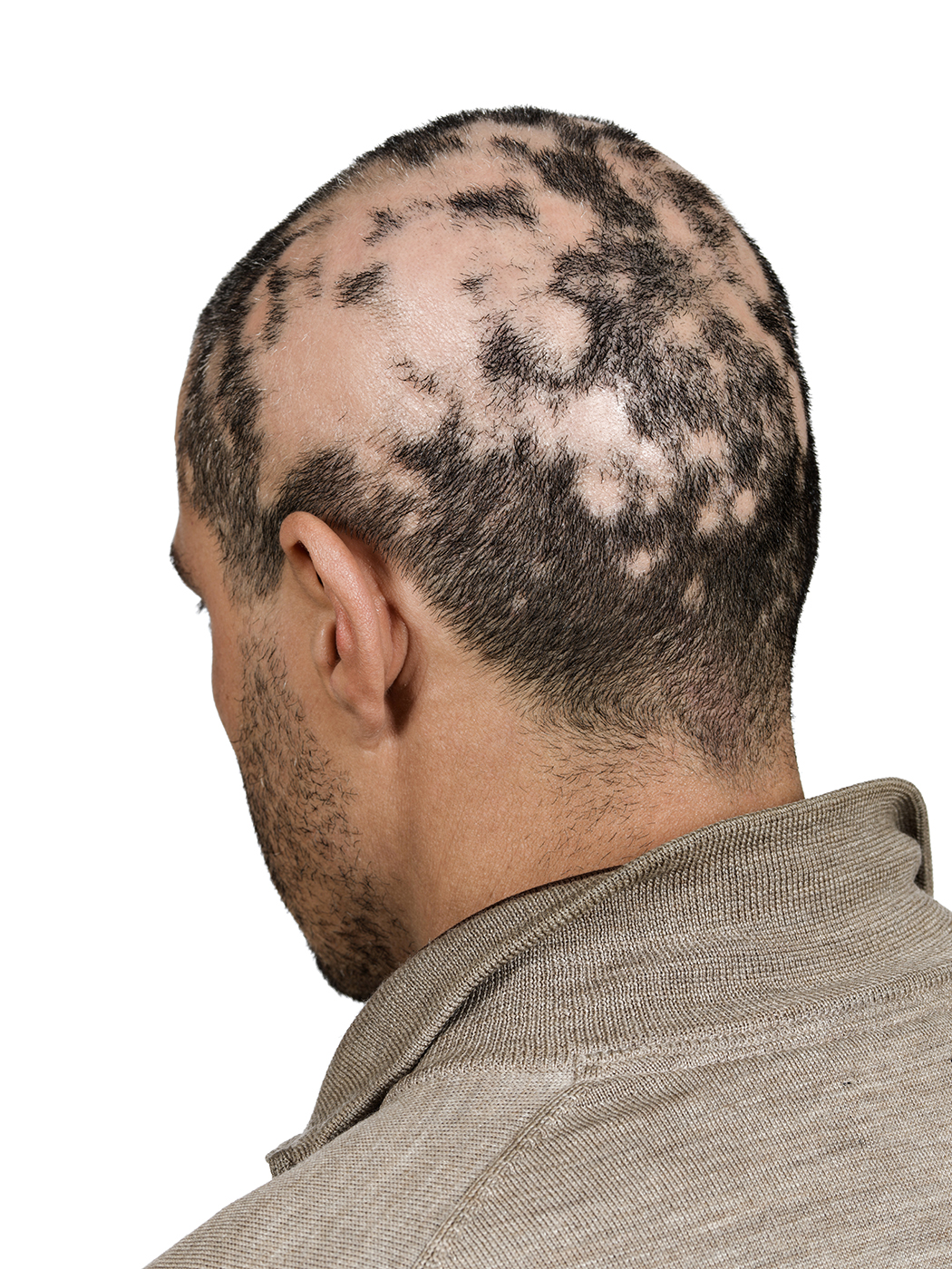 Men S Hair Loss What You Need To Know