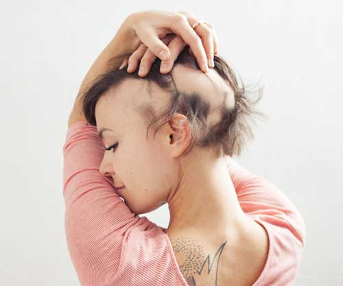 Another Cause For Sudden Hair Loss In Women Is Alopecia Areata A Condition That Includes Patches Of Falling Out Without Clear Explanation