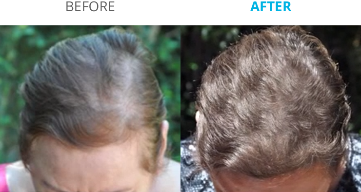 before_after_b@2x