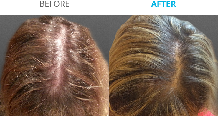 before_after_d@2x.fw
