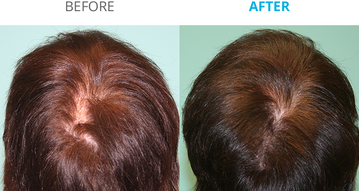 before_after_e@2x