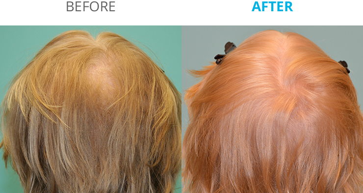 New Remedy For Hair Growth Toppik Theradome