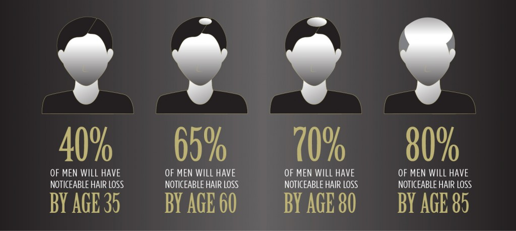 20150323_Hairloss20s_Men'sStats_750x330