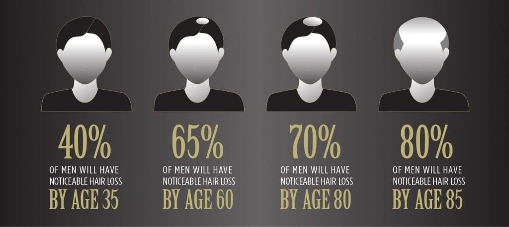 Signs of Balding in Men Infographic