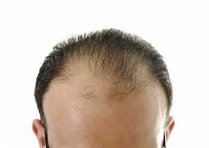 Man losing hair, baldness
