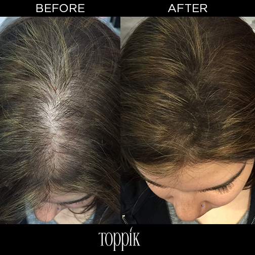 Hair Toppiks Discover The Many Ways To Use Toppik Hair Fibers