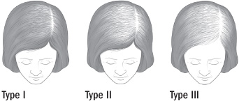 female pattern