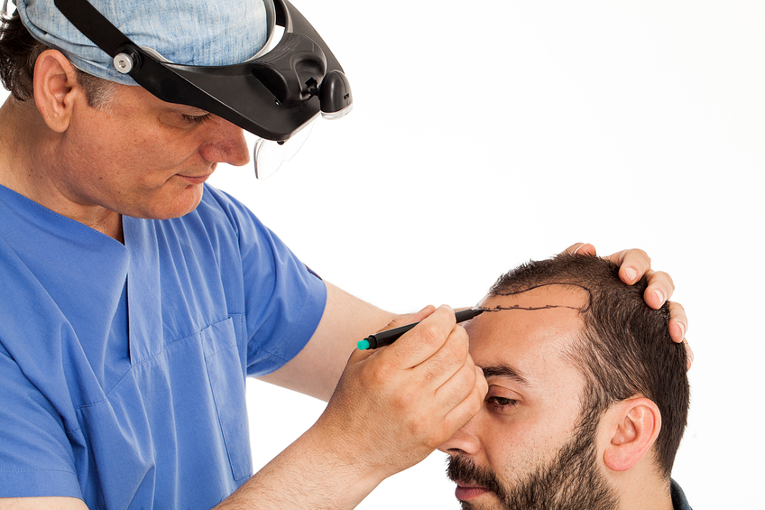 Image result for hair transplant surgery