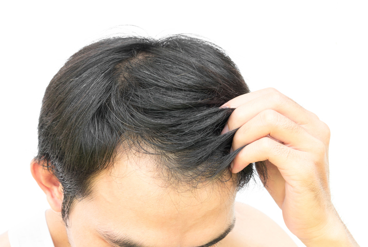 Hairstyles For Men With Thinning Hair Toppik Blog