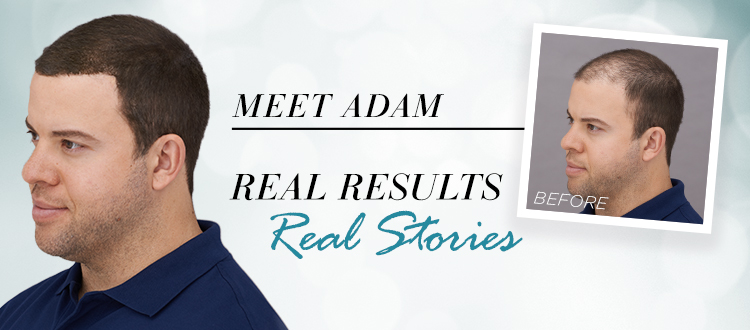How Toppik Changed Adam's Life