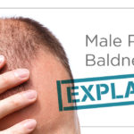 male-pattern-baldness-alopecia-Toppik-blog-post-hero