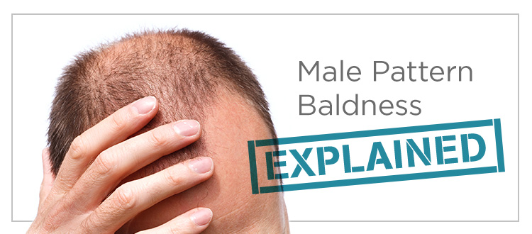 male-pattern-baldness-alopecia-Toppik-blog-post-hero