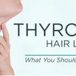 hypothyroidism hair loss thyroid hair loss causes toppik hair blog