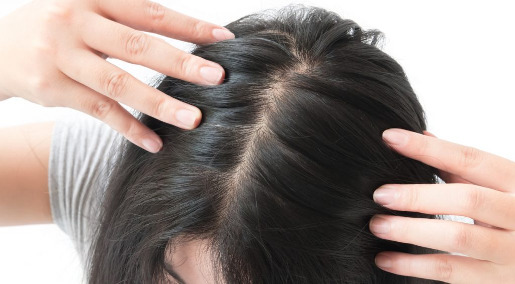 woman with black hair showing hair part knowing your bald spot treatment options toppik hair blog
