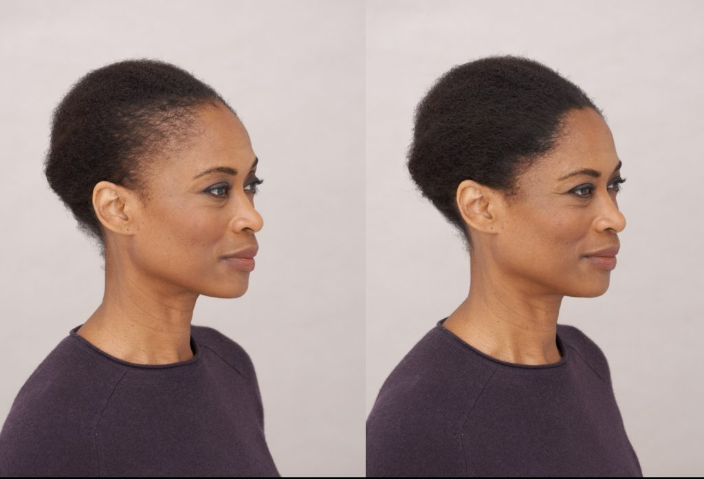 Before and after photos of an african american woman who used toppik hair fibers to fill in her hair line. Stop Hair Shedding Now, toppik hair blog