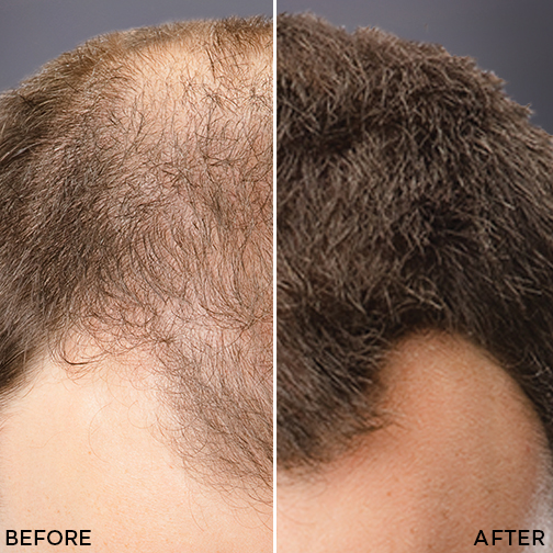 Man's hairline before after toppik colored hair thickener knowing your hair loss concealer options toppik hair blog