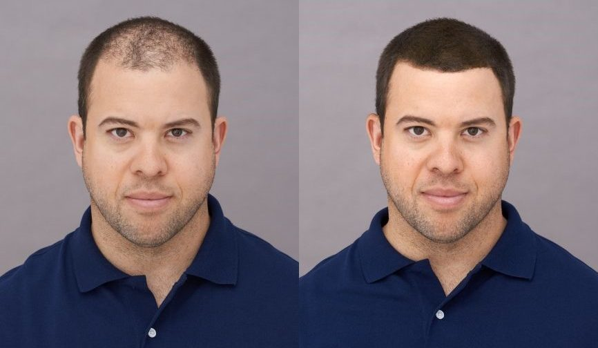 before after results photo real user man Adam Toppik Hair Building Fibers mens grooming tips for thin hair toppik hair blog