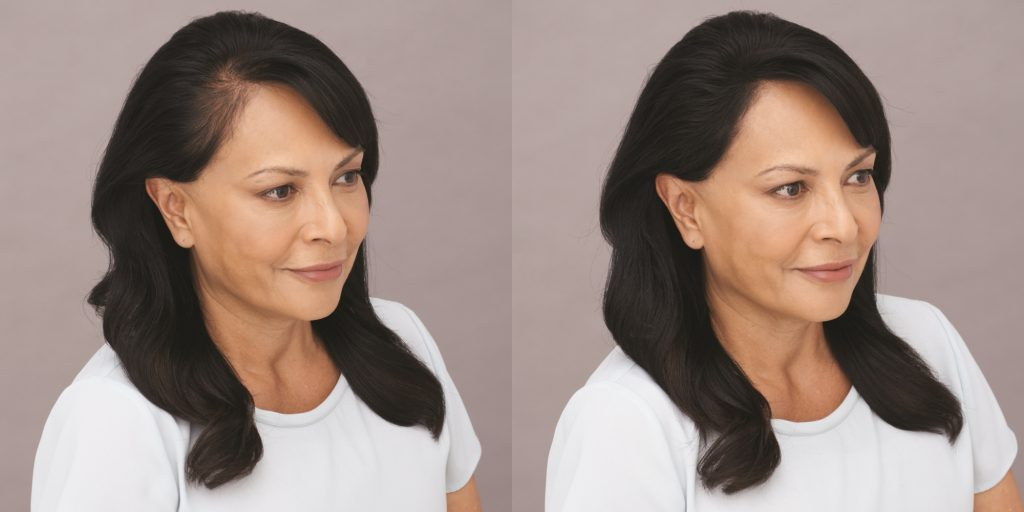 Toppik user Diane before and after photos - How Long Do Hair Fibers Last?