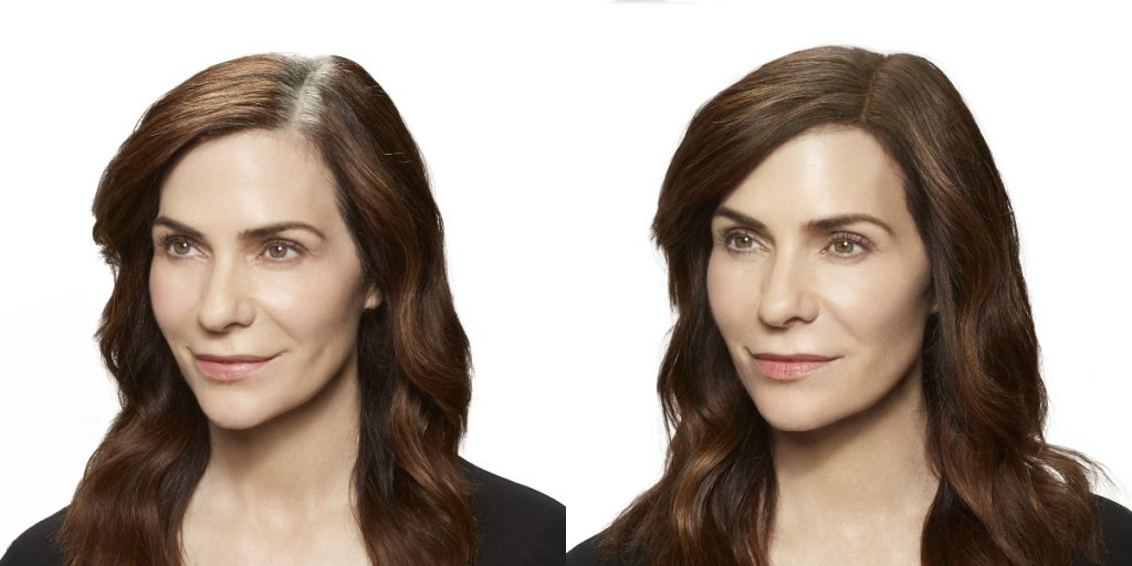 Before and after photos of woman with part clearly showing missing hair and fuller hair on the right (due to Toppik Root Touch-Up)