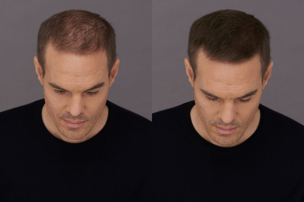 Before and After photos male user Steve Toppik Fibers results