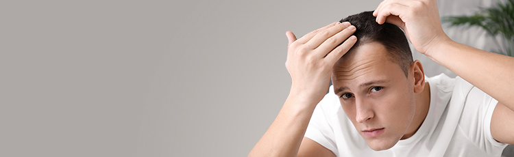 man l looking at his hairline toppik blog