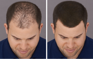 man with thinning hiar before and after toppik fibers application toppik blog